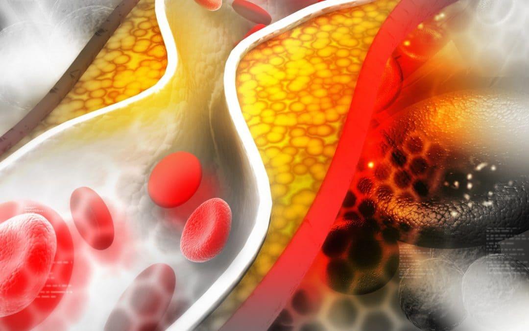 Dietas para reducir el colesterol.